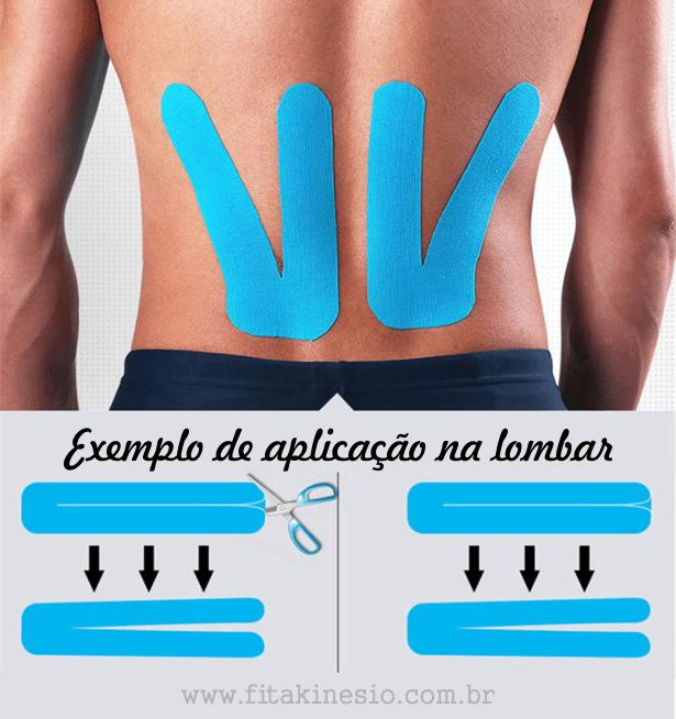 Fita Kinesio - exemplo de aplicação na lombar