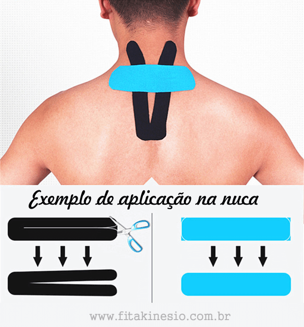 Bandagem elástica: exemplo de aplicação na nuca