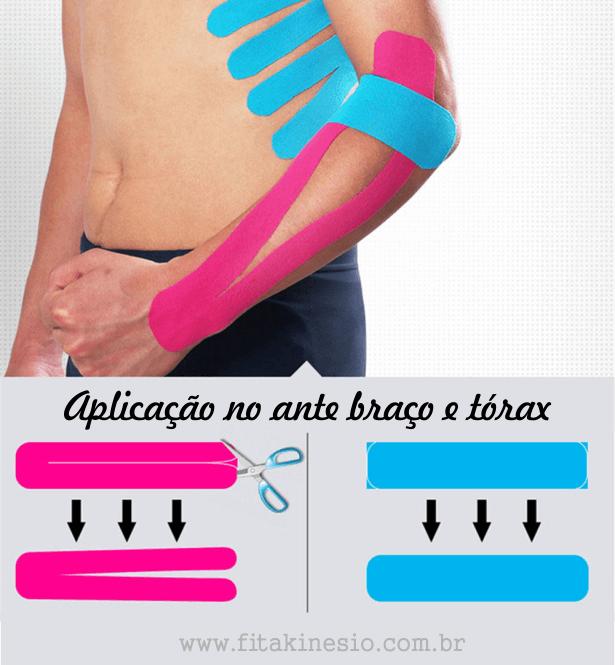 Exemplo de aplicação no ante braço e tórax da bandagem kinesio