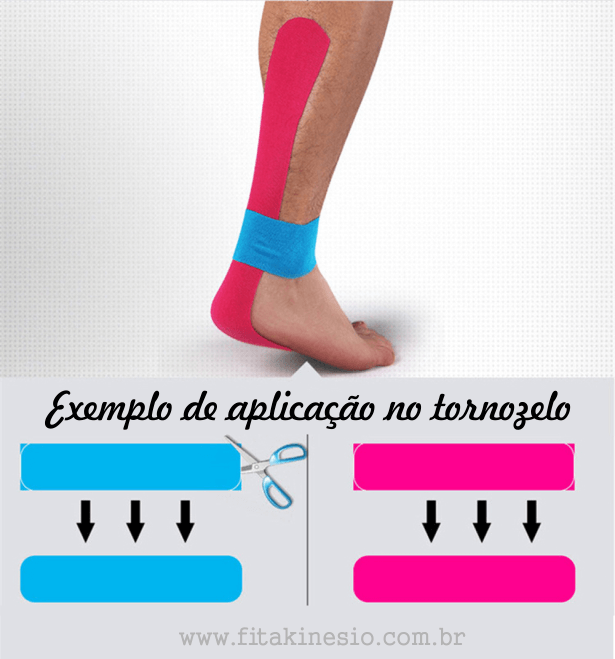 Exemplo de aplicação no tornozelo da bandagem terapêutica